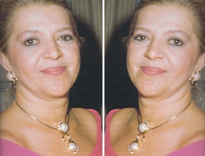 maria-do-carmo-vilaça3
